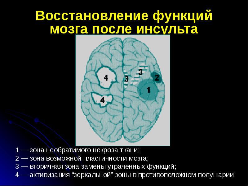 Восстановление функций мозга